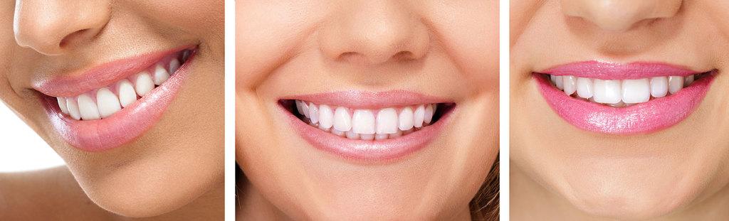 Alderwood General Dentistry Services