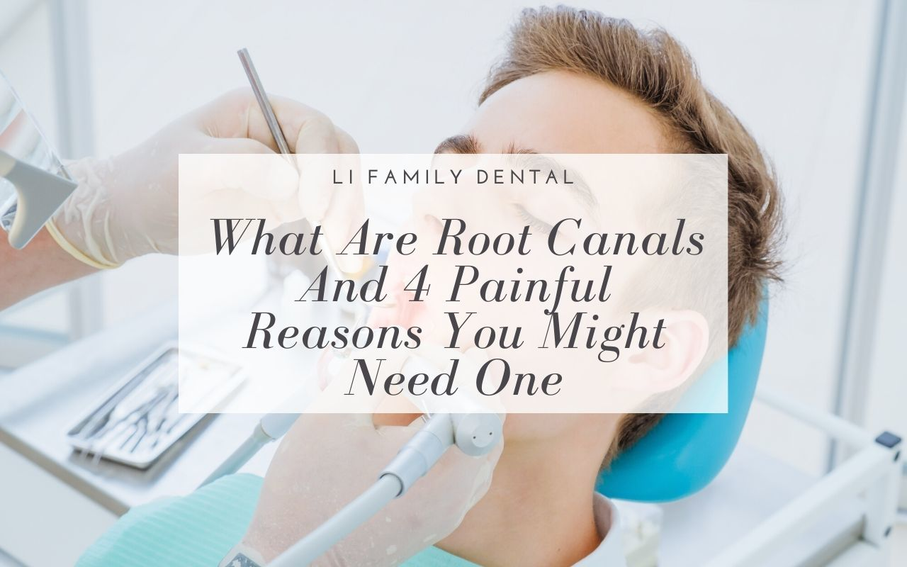 What Are Root Canals And 4 Painful Reasons You Might Need One