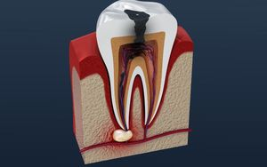 5 Causes of Tooth Pain Abscess - Li Family Dental