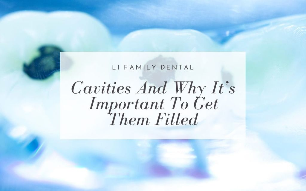 Cavities Important to Get Filled - Li Family Dental