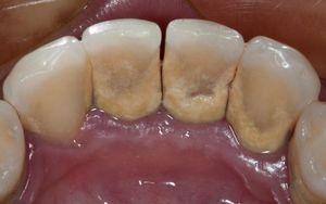 Cavities Plaque Tartar - Li Family Dental