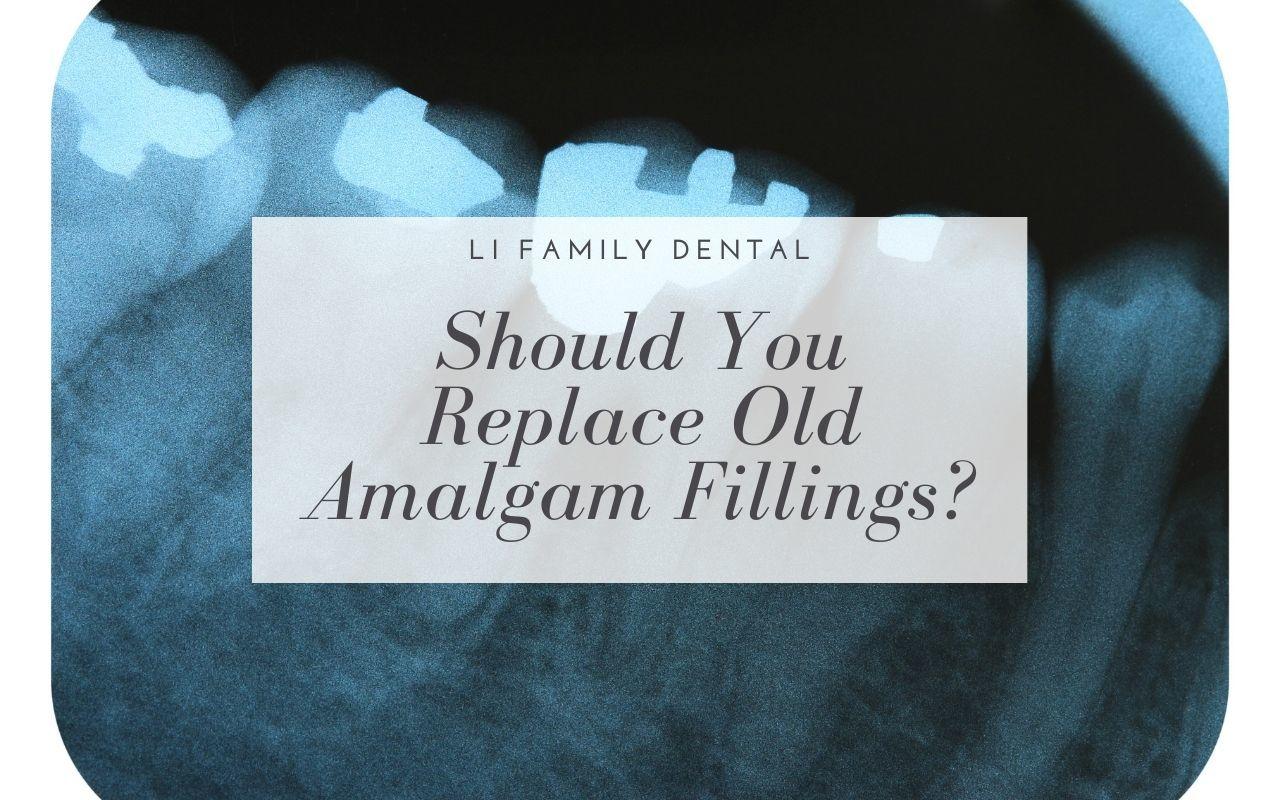 Should You Replace Old Amalgam Fillings?