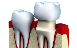 Dental-crown-caps-tooth-Same-Day-CEREC-Crowns-Etobicoke-Dentist