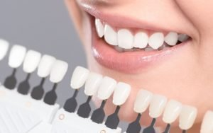 Perfect-smile-with-CEREC-dental-crowns-Etobicoke-Dentist