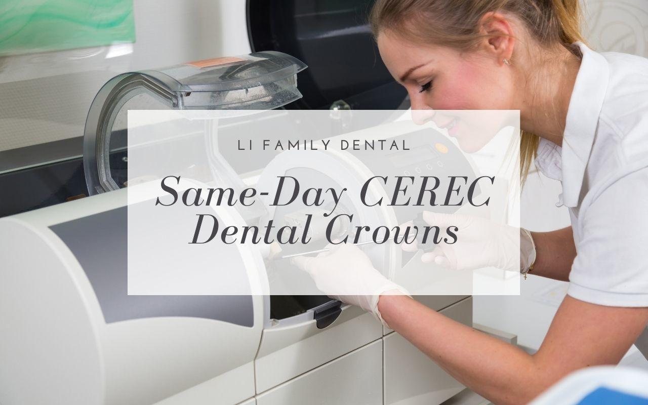 Same-Day CEREC Dental Crowns
